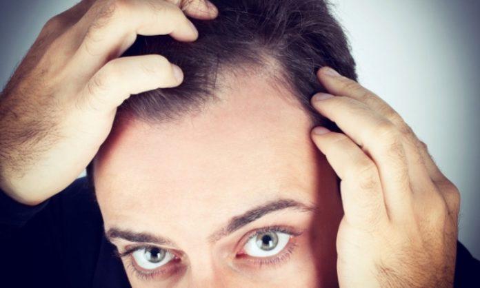 hair transplant, Baldness